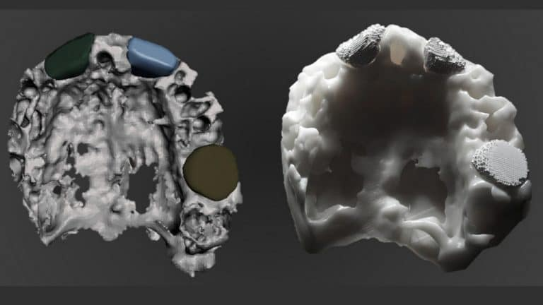 Real patient's cavities and MImetikoss 3D patient-specific scaffolds